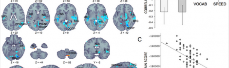 On brain function and cognitive performance in aging DOI: 10.1371/journal.pone.0120315